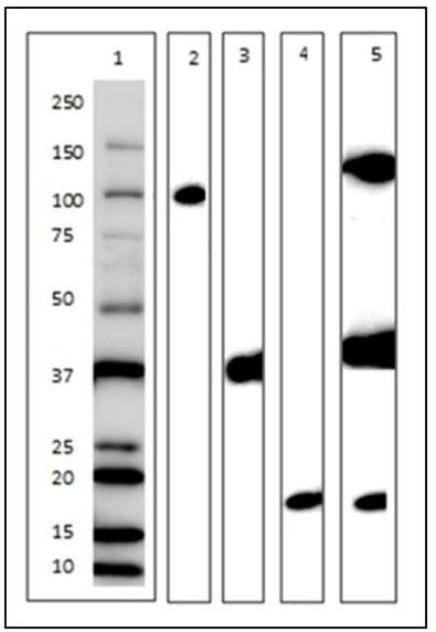 Western Blot for Plasma Membrane Antibody Cocktail – Component Separation