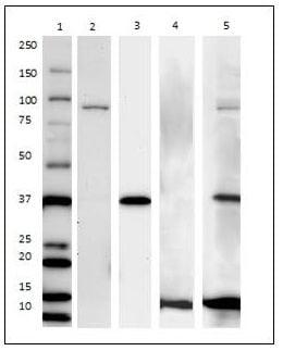 Western Blot for Endoplasmic Reticulum Membrane Antibody Cocktail – Component Separation