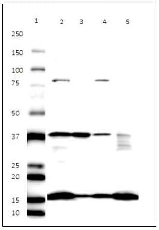 Western Blot for Endoplasmic Reticulum Membrane Antibody Cocktail – Cell Fractionation
