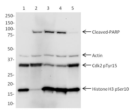 Western blot – Cell Cycle and Apoptosis Western Blot Cocktail  (ab139417):  Jurkat cells