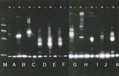 Western Blot of Thioester Assays (TE +ve/-ve controls) for all E2  conjugating enzymes provided