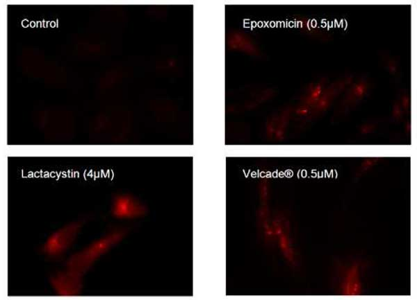 Aggresomes detected by Aggresome Detection Reagent in HeLa cells.