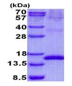 SDS-PAGE - Recombinant Human Uroplakin II/UPII protein (denatured) (ab139621)