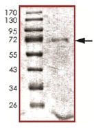 SDS-PAGE - Recombinant human STK19/G11 protein (ab139624)