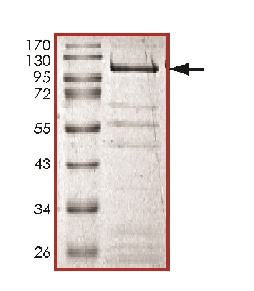 SDS-PAGE - Recombinant Mouse KDM4B / JMJD2B protein (Tagged) (ab139634)
