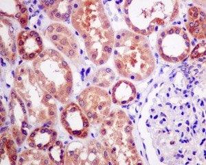 Immunohistochemistry (Formalin/PFA-fixed paraffin-embedded sections) - Anti-ME2 antibody [EP7217] (ab139686)
