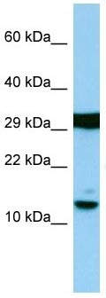 Western blot - Anti-Histone H2A antibody (ab139705)
