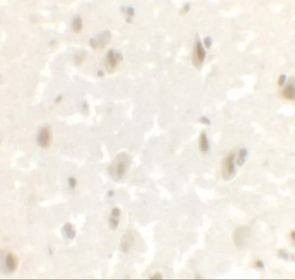 Immunohistochemistry (Formalin/PFA-fixed paraffin-embedded sections) - Anti-LMX1A antibody - C-terminal (ab139726)