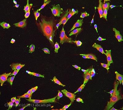 Immunocytochemistry/ Immunofluorescence - Anti-NSE antibody (ab139749)