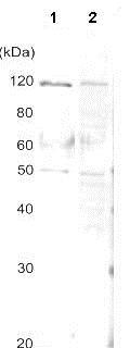 Western blot - Anti-AlaRS antibody (ab139993)