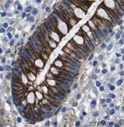 Immunohistochemistry (Formalin/PFA-fixed paraffin-embedded sections) - Anti-NUMB antibody (ab14140)