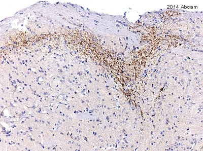 Immunohistochemistry (Formalin/PFA-fixed paraffin-embedded sections) - Anti-Substance P antibody [SP-DE4-21] (ab14184)