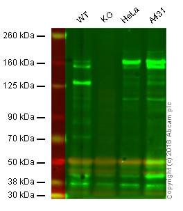 Western blot - Anti-MSH6 antibody [44] (ab14204)