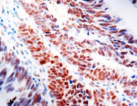 Immunohistochemistry (Formalin/PFA-fixed paraffin-embedded sections) - Anti-MLH1 antibody [G168-15] (ab14206)