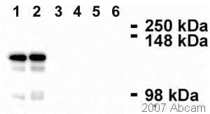 Western blot - Anti-Desmoglein 2/DSG2 antibody [6D8] (ab14415)