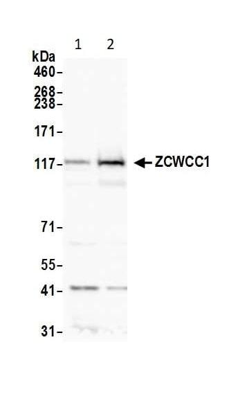 Western blot - Anti-ZCWCC1 antibody (ab14429)