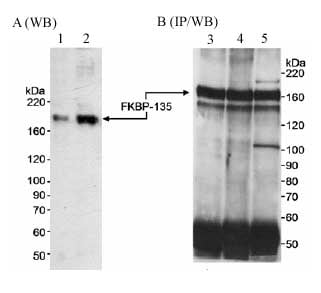 Immunoprecipitation - Anti-FKBP135 antibody (ab14433)