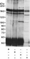 Immunoprecipitation - Anti-FKBP135 antibody (ab14434)