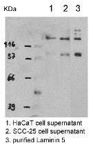 Western blot - Anti-Laminin 5 antibody (ab14509)
