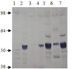 Western blot - Anti-PDE7A/HCP1 antibody (ab14616)