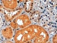 Immunohistochemistry (Formalin/PFA-fixed paraffin-embedded sections) - Anti-S6K1 antibody (ab14708)