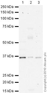 Western blot - Anti-NDUFA9 antibody [20C11B11B11] (ab14713)