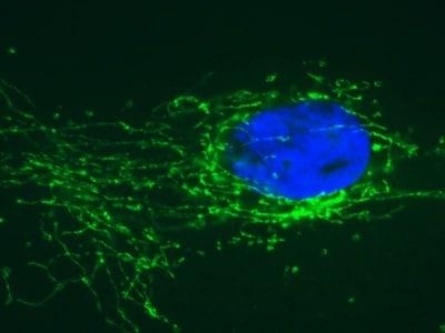Immunocytochemistry/ Immunofluorescence - Anti-SDHB antibody [21A11AE7] (ab14714)