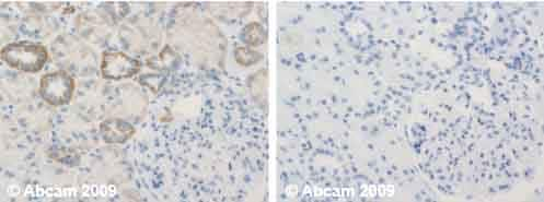 Immunohistochemistry (Formalin/PFA-fixed paraffin-embedded sections) - Anti-UQCRFS1/RISP antibody [5A5] (ab14746)