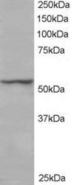 Western blot - Anti-UBXD8 antibody (ab14759)