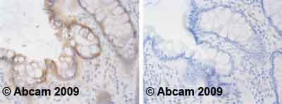 Immunohistochemistry (Formalin/PFA-fixed paraffin-embedded sections) - Anti-PPM1A antibody [p6c7] (ab14824)