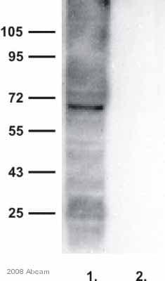 Western blot - Anti-Bestrophin/BEST1 antibody (ab14927)