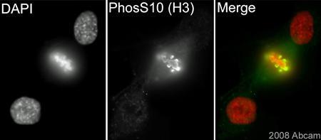 Immunocytochemistry - Anti-Histone H3 (phospho S10) antibody [mAbcam 14955] (ab14955)