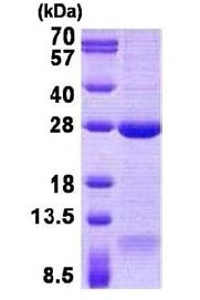 SDS-PAGE - Recombinant Human DNAL1 protein (denatured) (ab140050)