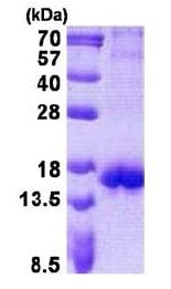 SDS-PAGE - Recombinant Human CTLA4 protein (denatured) (ab140054)
