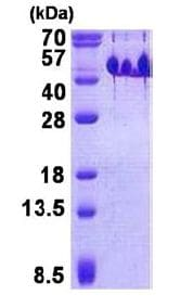 SDS-PAGE - Recombinant Human BASP1 protein (ab140056)