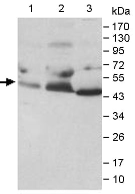 Western blot - Anti-Ephrin B2 antibody (ab140077)