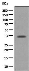 Western blot - Anti-D Amino Acid Oxidase antibody [EPR7555] (ab140127)