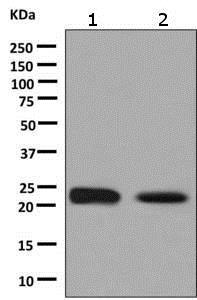 Western blot - Anti-Glutathione Peroxidase 2/GPX2 antibody [EPR8175(2)] (ab140130)