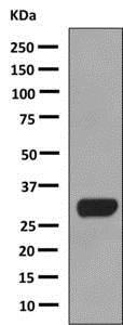 Western blot - Anti-Calcipressin 1/RCAN1 antibody [EPR8911] (ab140131)