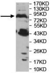 Western blot - Anti-PNPLA8 antibody (ab140151)