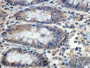 Immunohistochemistry (Formalin/PFA-fixed paraffin-embedded sections) - Anti-PMPCA/INPP5E antibody (ab140171)