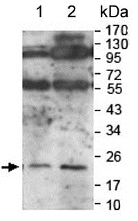 Western blot - Anti-Interferon beta antibody (ab140211)