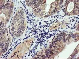 Immunohistochemistry (Formalin/PFA-fixed paraffin-embedded sections) - Anti-PI 3 Kinase catalytic subunit gamma/PI3K-gamma antibody [OTI4G10] (ab140307)