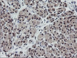 Immunohistochemistry (Formalin/PFA-fixed paraffin-embedded sections) - Anti-ETS2 antibody [OTI1H4] (ab140371)