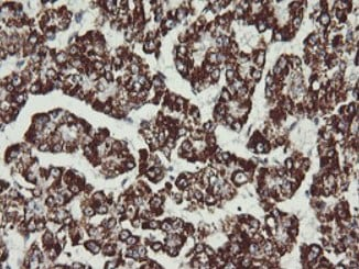 Immunohistochemistry (Formalin/PFA-fixed paraffin-embedded sections) - Anti-MEK2 antibody [OTI1A2] (ab140372)