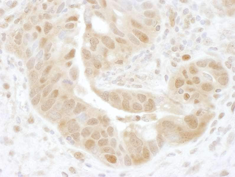 Immunohistochemistry (Formalin/PFA-fixed paraffin-embedded sections) - Anti-PSMD7/Mov34 antibody (ab140428)
