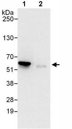 Immunoprecipitation - Anti-Proteasome 26S S3/PSMD3 antibody (ab140440)