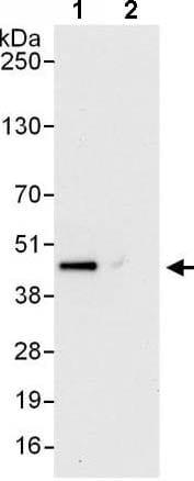 Immunoprecipitation - Anti-PSMD6 antibody (ab140461)