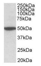 Western blot - Anti-Muscarinic Acetylcholine Receptor 2/CM2 antibody (ab140473)