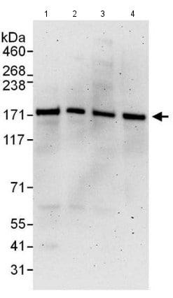 Western blot - Anti-SMC1A antibody (ab140493)